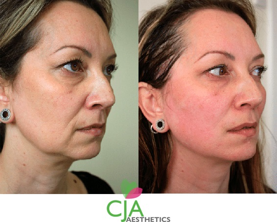 PDO Thread Lift Treatments, Former Jawline & Skin, Top Cosmetics Doctor in Southampton