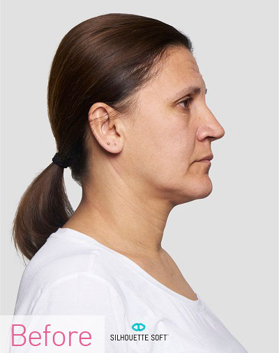 Thread-Lifts-Non-Surgical-Face-Lifts-Southampton-Portsmouth-Chichester-Winchester