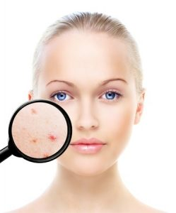 acne treatments, the best aesthetics clinics in southampton, portsmouth, basingstoke, winchester and reading