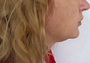 double chin treatments, the best aesthetics clinic in southampton