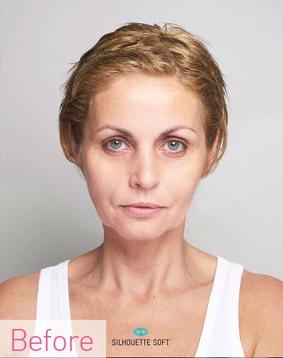 Non-invasive facelift, thread lift, top Southampton clinic