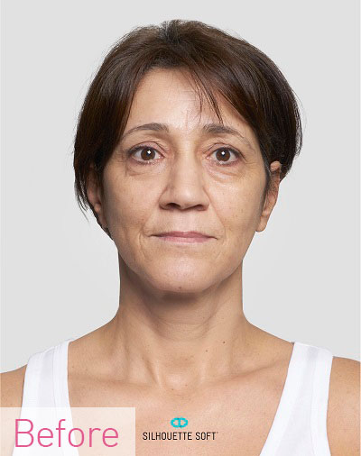 Thread-Lifts-non-Surgical-Facelifts-Southampton-Portsmouth-Chichester-Winchester