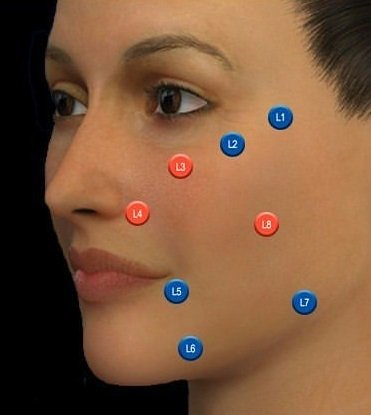 MD Codes for precise dermal fillers, the best dermal fillers in Southampton, Portsmouth