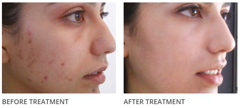 The Perfect Peel before & after 1