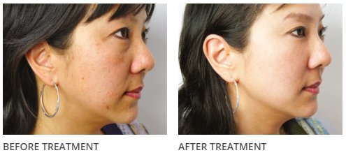 chemical peels, southampton and portsmouth clinic