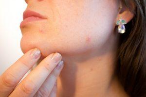 acne treatments, skin specialist clinics, southampton, Portsmouth, Gosport, Fareham, Stubbington