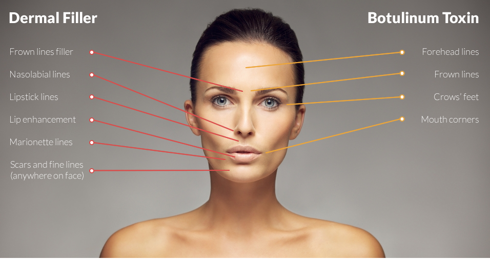 Botox injections, top aesthetics clinic in Southampton