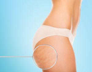 treatments for stretch marks, cja aesthetics clinic, southampton