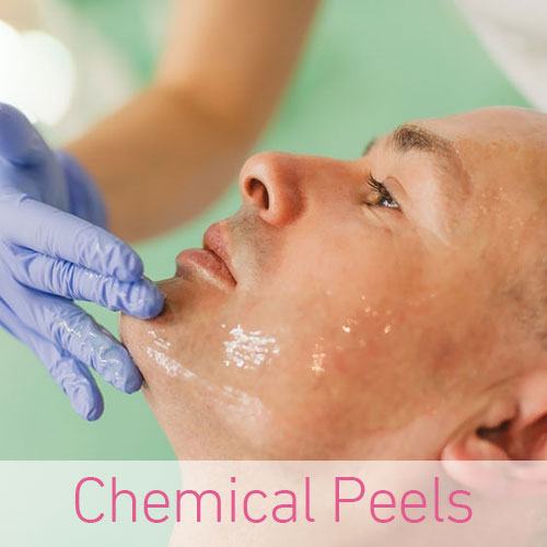 Chemical Peels at top clinics in Southampton, Portsmouth, Southsea, Totton, Hook, Petersfield, Chichester, Winchester