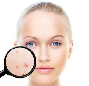 acne treatments, prescription skincare creams, cja aestethetics clinics, hampshire