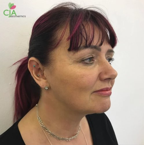 after anti-ageing treatments, cja aesthetics by Dr Chris Airey in Southampton