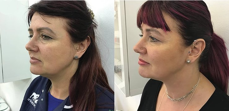 before and after non surgical facelift at cja aesthetics clinic in southampton
