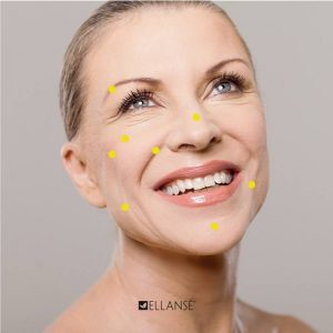 Ellanse anti aging treatments CJA Aesthetics Southampton