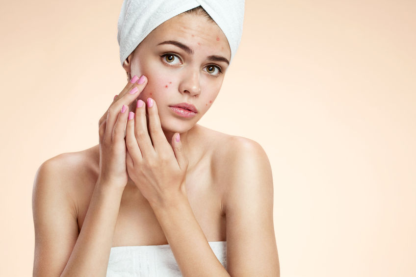Top Tips For Treating Acne