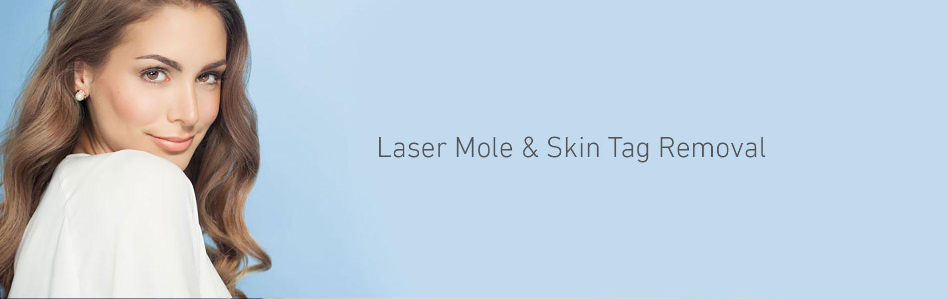 Laser Mole Skin Tag Removal Southampton Hampshire Aesthetics Clinics