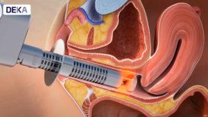 Vulvo vaginal atrophy treatment DEKA Technologies
