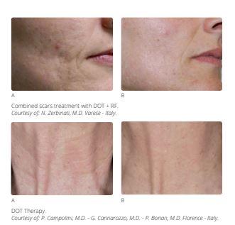 CO2 Fractional Laser Skin Resurfacing Southampton Hampshire Aesthetics Clinics