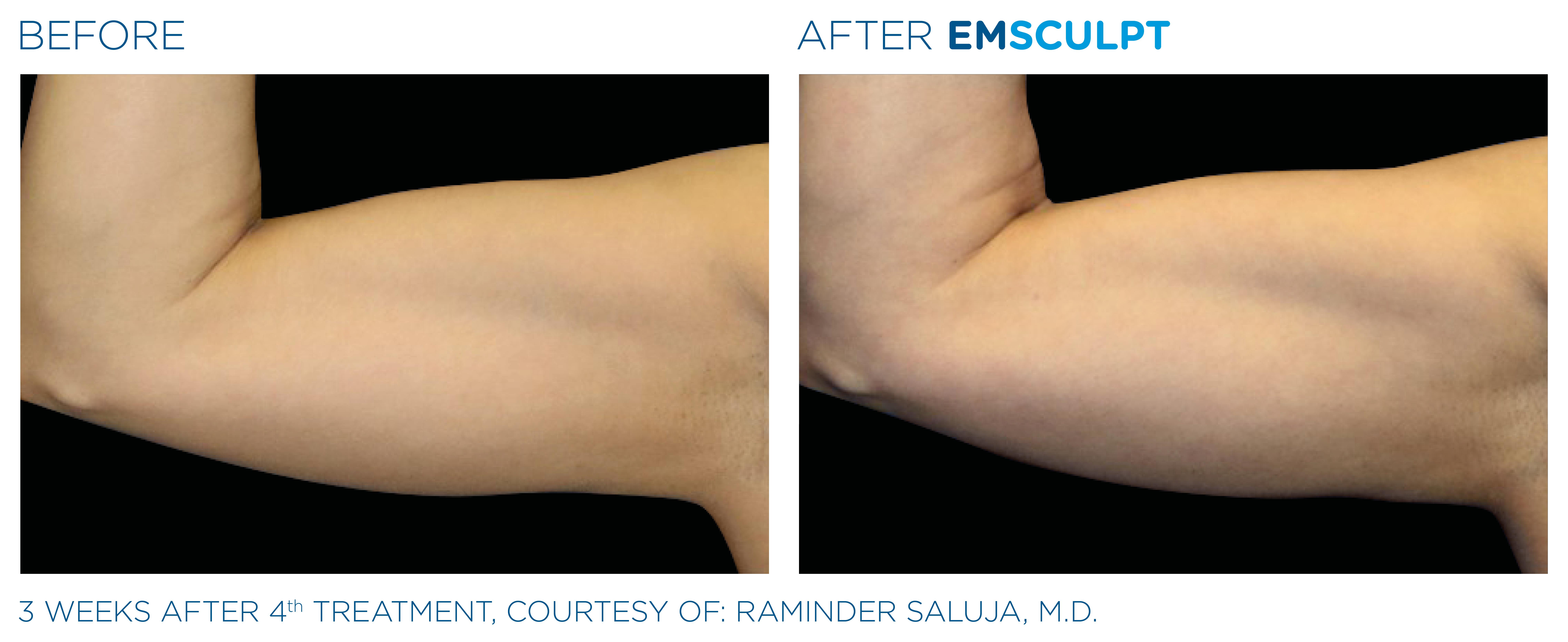 Increase Arm Strength with EMSCULPT Hampshire aesthetics Clinics