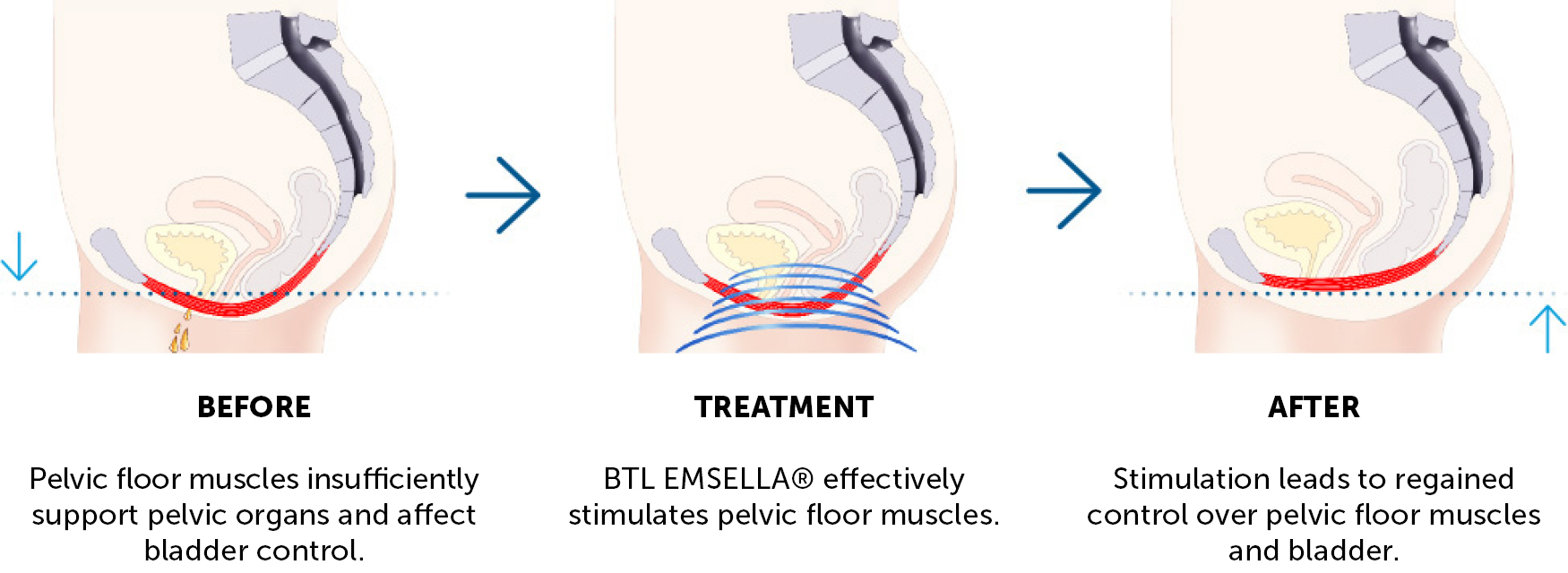 Emsella Incontinence Treatment Results CJA Aesthetics Hampshire