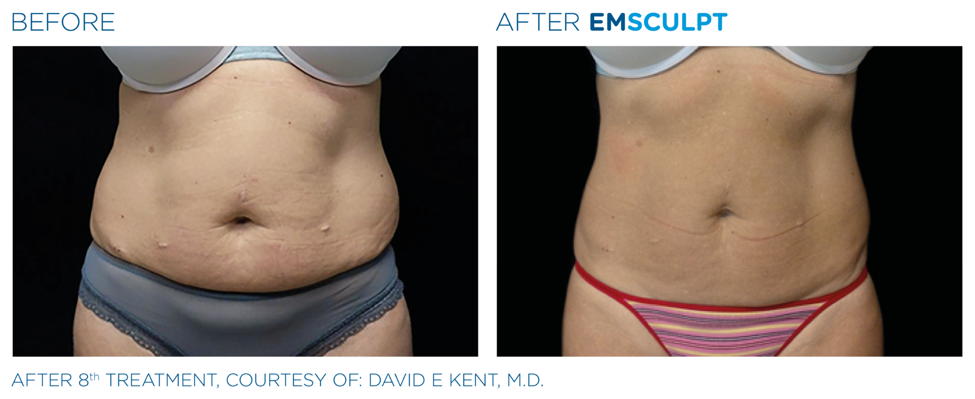 Lose Belly Fat with EMSCULPT treatments Winchester Southampton