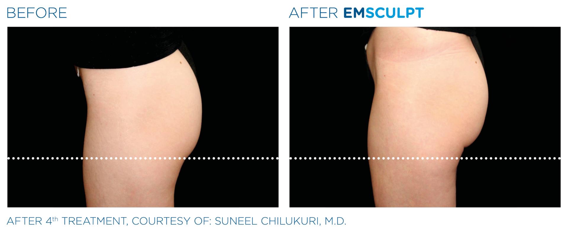 EMSCULPT non surgical butt lift Southampton Aesthetics Clinic