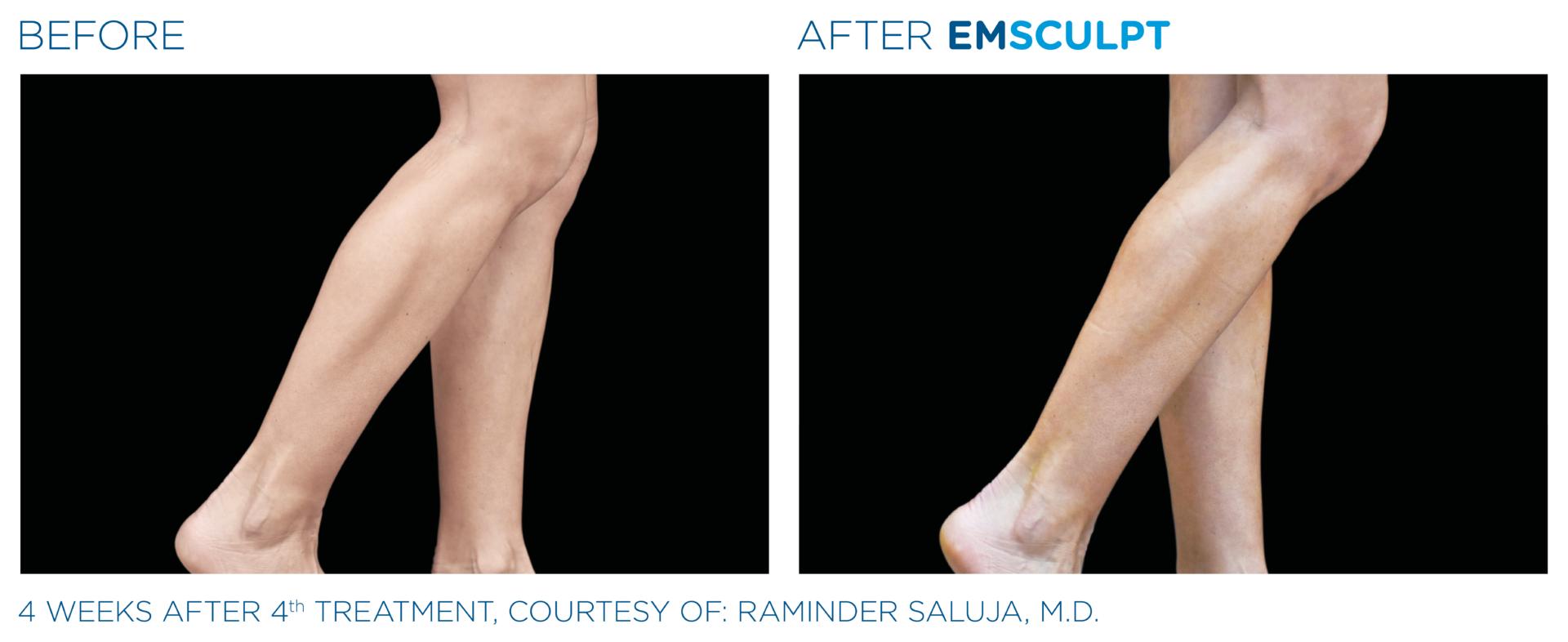 Build calf muscles with EMSCULPT Southampton aesthetics clinic
