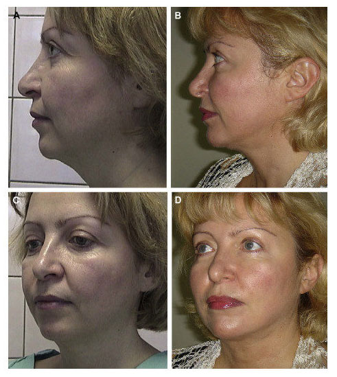 xNon Surgical Face lift Aptos Thread Lifts Before and After images CJA Aesthetics Southampton 2 e1618492682382.jpg.pagespeed.gpjpjwpjwsjsrjrprwricpmdim100.ic .0RsKsz7V76