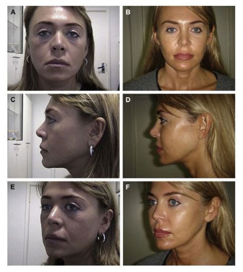 xNon Surgical Face lift Aptos Thread Lifts Before and After images CJA Aesthetics Southampton e1618492807150.jpg.pagespeed.gpjpjwpjwsjsrjrprwricpmdim100.ic .3suXhfjQ5u