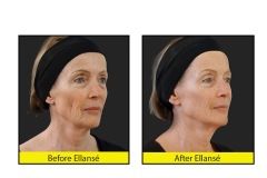Ellanse-anti-aging-fillers-before-and-after-images
