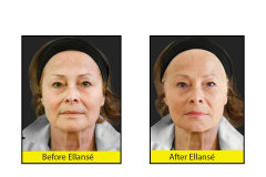 Reduce-wrinkles-with-Ellanse-Dermal-Fillers-at-CJA-Aesthetics-Southampton