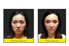 Smoother-Skin-with-Ellanse-anti-aging-Treatments-at-CJA-Aesthetics-Hampshire
