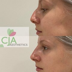 Dermal-Filler-Nose-Job-CJA-Medical-Hampshire-Aesthetics-clinics
