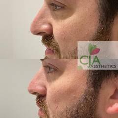 Liquid-Rhinoplasty-Porstmouth-CJA-Aesthetics-Clinics